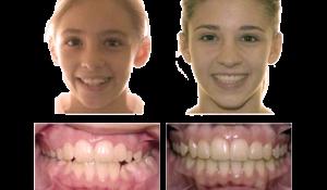 Ортодонтия в Кудрово