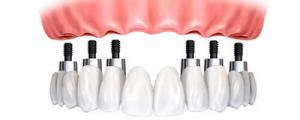 Что делать, если совсем нет зубов