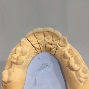 форма будущих зубов