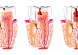 Что такое киста зуба?