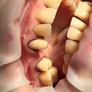 обработка зубов, снятие слепков