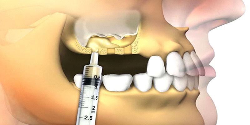 Восполнение недостатка костной ткани с помощью био синус лифтинга
