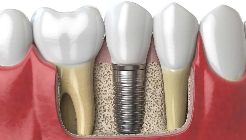 Визит Стома использует в работе субкрестальные импланты Ankylos немецкогопроизводителя Dentsply Implants и Implay израильской компании Implay Dental Implant Systems.