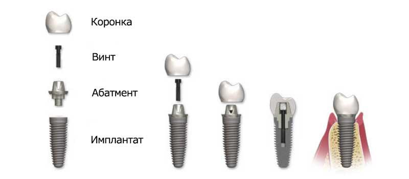 Так выглядит разборный винтовой имплант