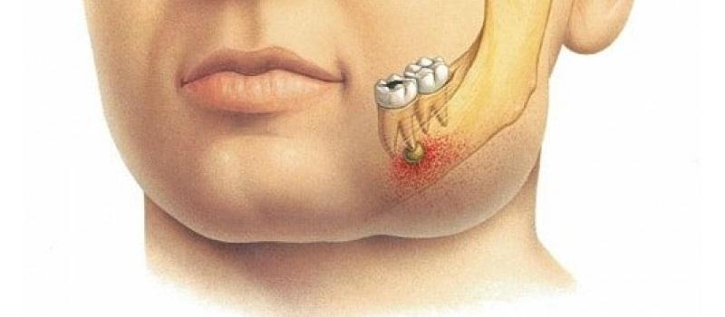 На фоне воспаления при хроническом пульпите в пульпе происходят кровоизлияния, разрушаются ткани, образуется гной