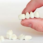 Какие зубные коронки выбрать?