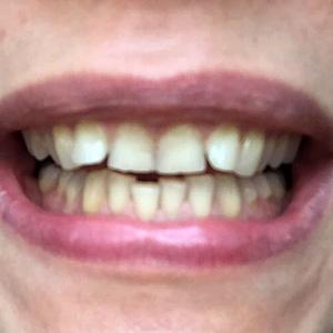 Установка виниров на все зубы