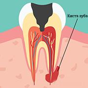 Киста корня зуба: что это и чем она опасна?