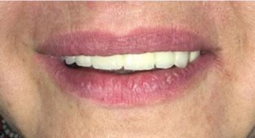 Имплантация зубов в Кудрово