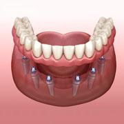 Протезирование на имплантах в случае утраты всех зубов