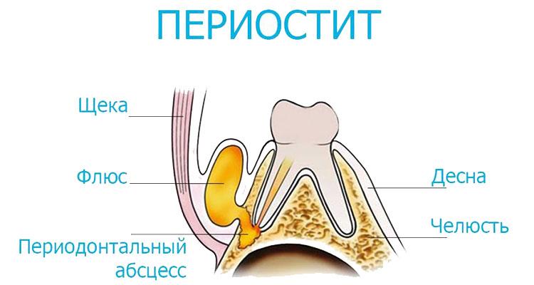 Лечение периостита в стоматологии в Кудрово