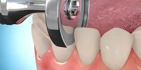 Механическая сепарация зубов