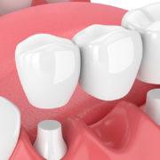Мостовидный протез при утрате одного зуба