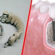 протез или имплант