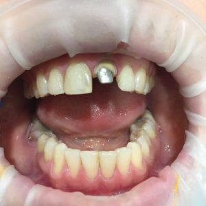 Временный зуб