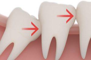 Когда надо удалять зуб