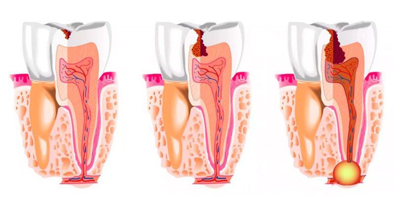 Что такое киста корня зуба?
