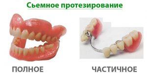 Полное и частичное протезирование