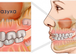 Расположение гайморовой пазухи относительно кости верхней челюсти