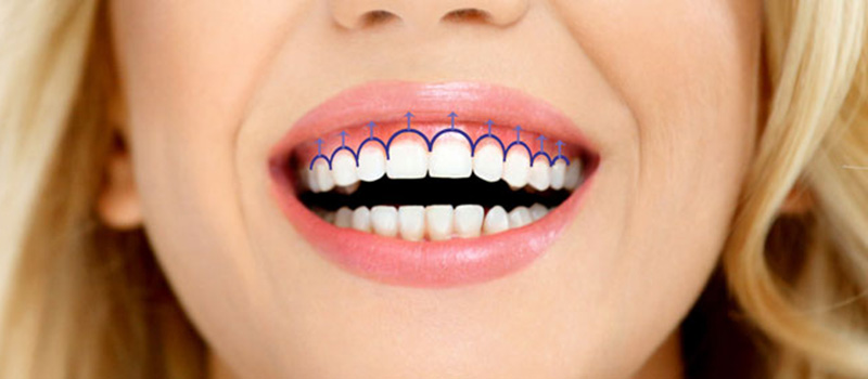 Исправление недостатков улыбки хирургическим лечением