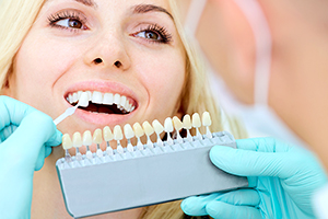 Реставрация зубов винирами в визит стома
