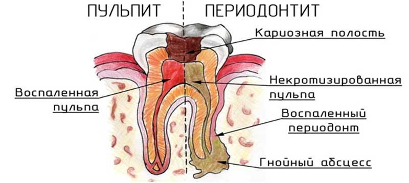 Как кариес перерастает сначала в пульпит, а затем в периодонтит