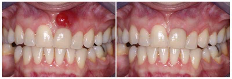 Образование свищевого хода над зубом с хроническим периодонтитом
