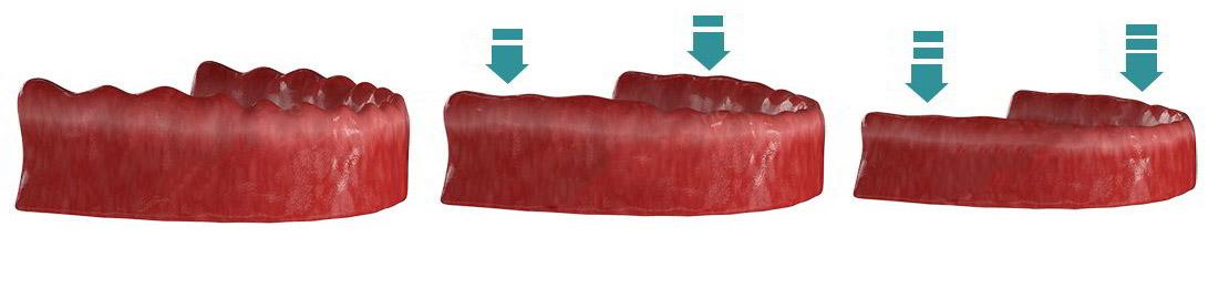 Деформация костной ткани